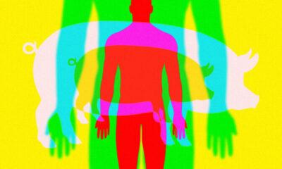 Bir Girişim Bu Yıl Domuzdan İnsana Organ Nakli Yapmayı Planlıyor