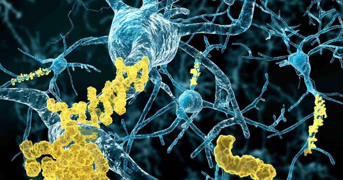 Bu Algoritma Yazılarınızı Okuyarak Alzheimer Olduğunuzu Anlayabilir